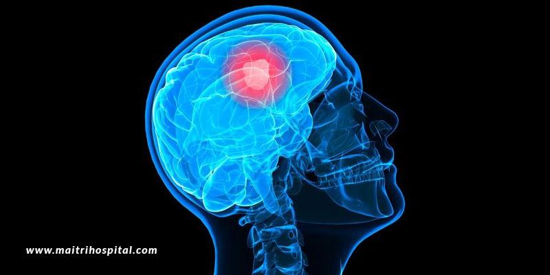 Brain-Tumour-Warning-Signs